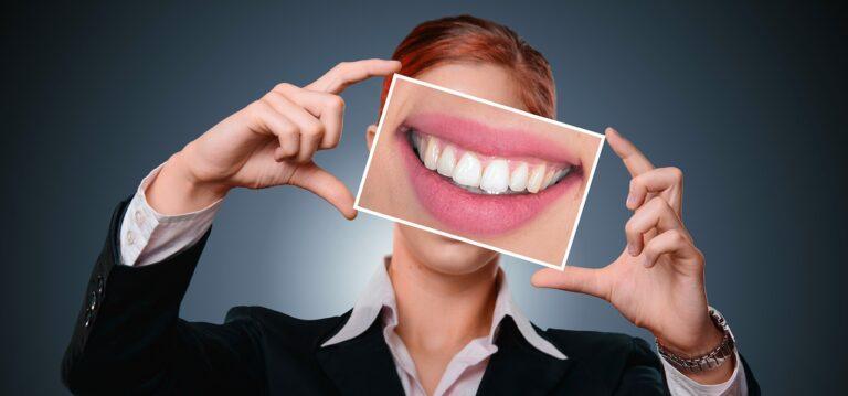 Da cosa prendono il nome i denti?